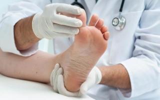 Демиелинизирующая полинейропатия: причины, симптомы, лечение