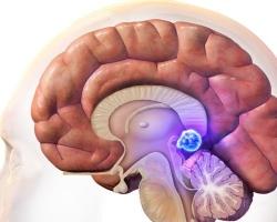 Киста в голове: что это такое, симптомы, лечение