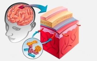 Реактивный менингит: особенности молниеносной формы заболевания