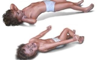Что делать при фебрильных судорогах у ребенка