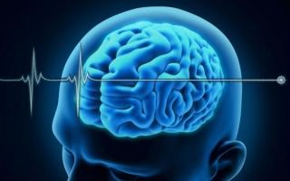 Через сколько умирает мозг после остановки сердца