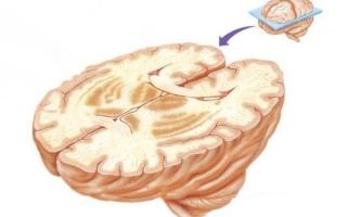 Базальные ганглии головного мозга