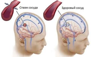 Что такое спазм сосудов головного мозга