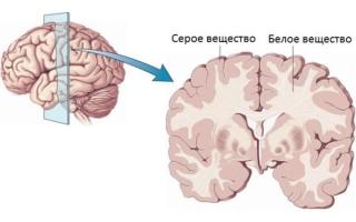 Что такое белое вещество головного мозга