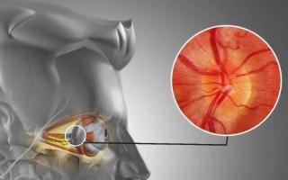 Ретробульбарный неврит: симптомы и лечение воспаления глазного нерва