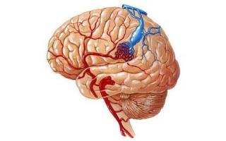 Сосудистые мальформации головного мозга