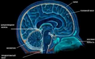 Киста шишковидного тела головного мозга