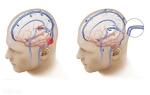 Венозный застой сосудов головного мозга