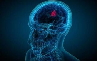 Киста ретроцеребеллярная в головном мозге