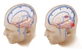 Симптомы и лечение вазоспазма сосудов головного мозга