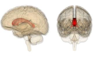 Что такое агенезия мозолистого тела у новорожденного