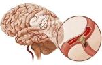 Что делать, если забиты сосуды головного мозга