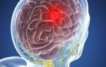 Диагностика опухоли головного мозга: как выявить патологию