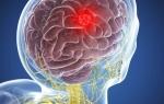 Опухоль головного мозга глиобластома: симптомы, стадии, как лечить