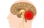 Атрофические изменения мозжечка