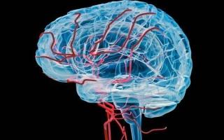 Гипоплазия артерий головного мозга