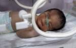 Последствия кислородного голодания мозга у новорожденных