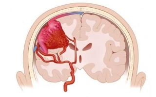 Ангиома сосудов головного мозга