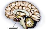 Новообразование головного мозга: аденома гипофиза