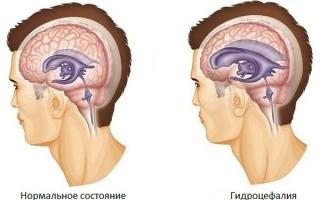 Заместительная гидроцефалия: симптомы, диагностика, лечение