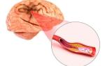 Признаки и лечение церебрального атеросклероза сосудов головного мозга