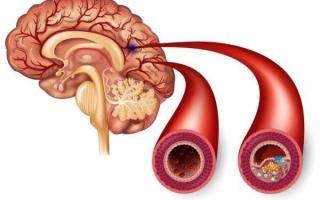 Ишемия сосудов головного мозга: признаки, диагностика, лечение