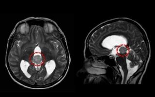 Гидроцефалия окклюзионная: признаки, причины, лечение