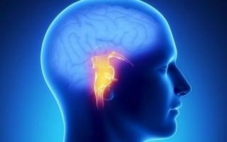 Инсульт ствола головного мозга
