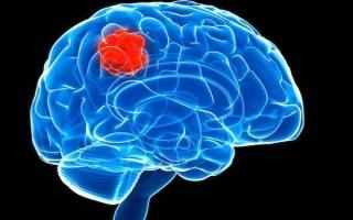Опухоль головного мозга астроцитома: причины, симптомы, лечение