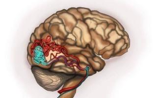 Кавернома головного мозга: что это такое и как лечить
