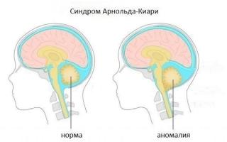 Мальформация Арнольда-Киари: признаки, лечение, последствия