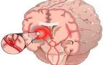 Лопнул сосуд в головном мозге: признаки, лечение, последствия