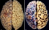 Отмирание клеток головного мозга: диагностика и лечение атрофии