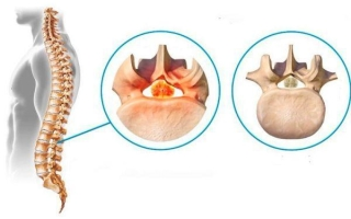 Воспаление спинного мозга: симптомы и лечение поперечного миелита