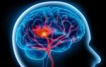Что такое дисциркуляторная энцефалопатия 1 степени