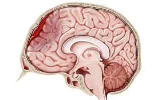 Внутричерепная гематома: симптомы, лечение, последствия