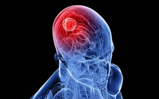 Симптомы и лечение глиомы головного мозга