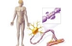 Синдром Гийена-Барре: что это за болезнь