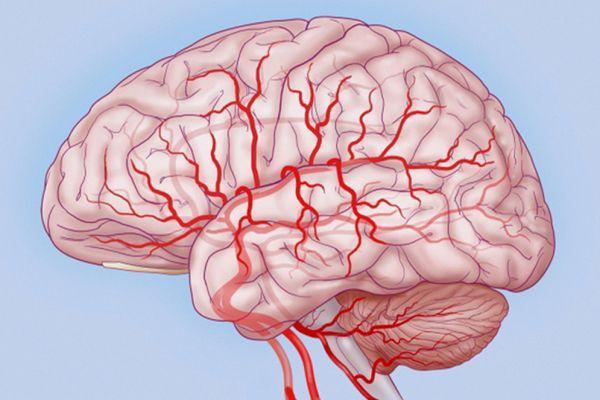 кровеносные сосуды мозга