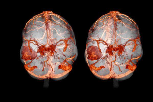 кт сосудов мозга с окрашиванием