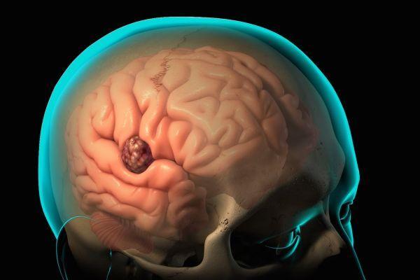 мозговая опухоль