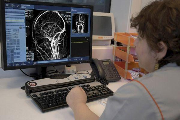 ангиография сосудов головы