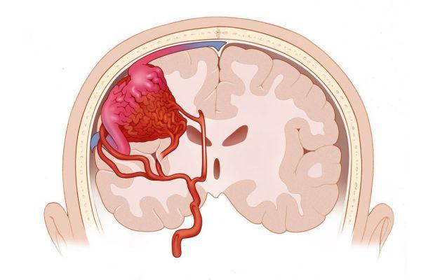 ангиома в голове