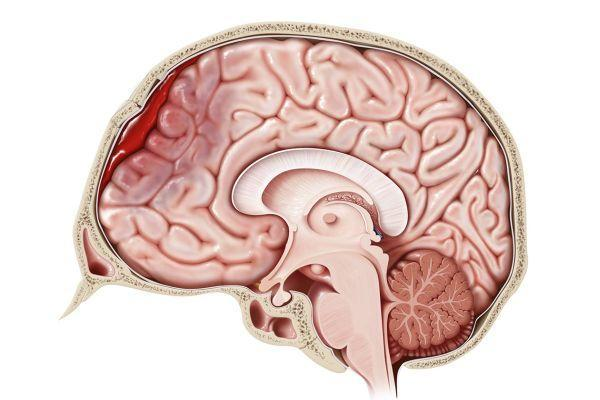 гематома в голове