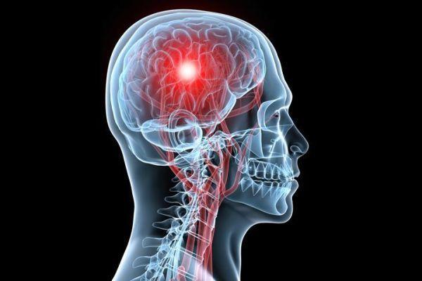 воспаление в мозгу