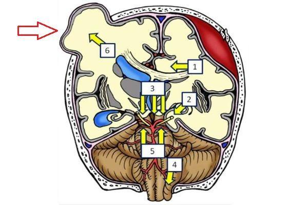 дислокация мозга наружная