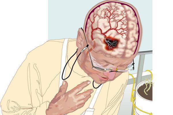 некроз в мозге