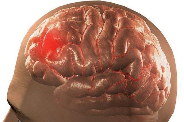 поврежденный мозг