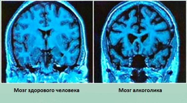 сравнение мозга