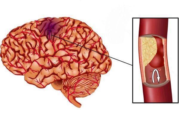 инфаркт мозга